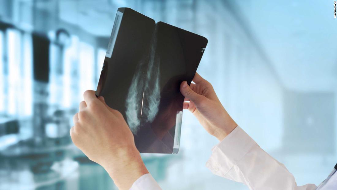 Googles KI-system schlagen kann ärzte bei der Erkennung von Brustkrebs