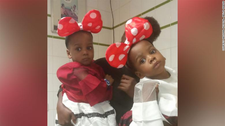 Dis Nigerian doctors don separate conjoined twins (photos)