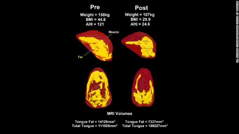 MRI's on the left show levels of fat (in yellow) before weight loss. The images on the right show decreased levels of fat after a 10% overall weight loss.
