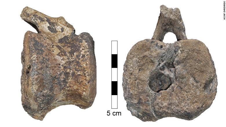 O boală rară care afectează și astăzi oamenii a fost găsită în vertebra fosilizată a unui dinozaur cu factură de rață care a cutreierat Pământul cu cel puțin 66 de milioane de ani în urmă.