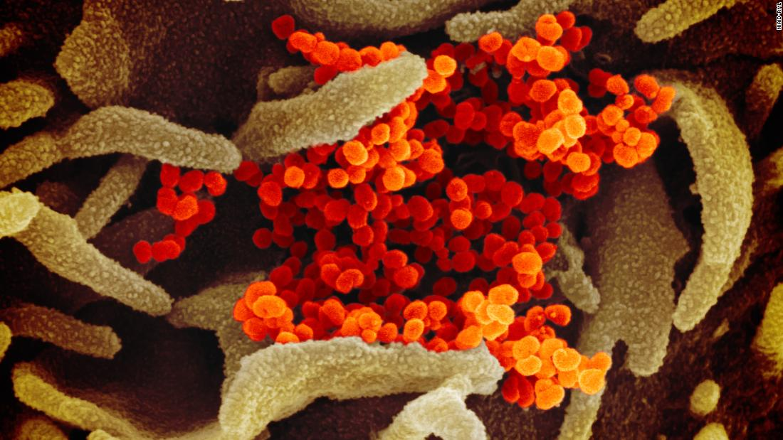 This scanning electron microscope image shows SARS-CoV-2 (orange)—also known as 2019-nCoV, the virus that causes COVID-19—isolated from a patient in the U.S., emerging from the surface of cells (green) cultured in the lab. Credit: NIAID-RML