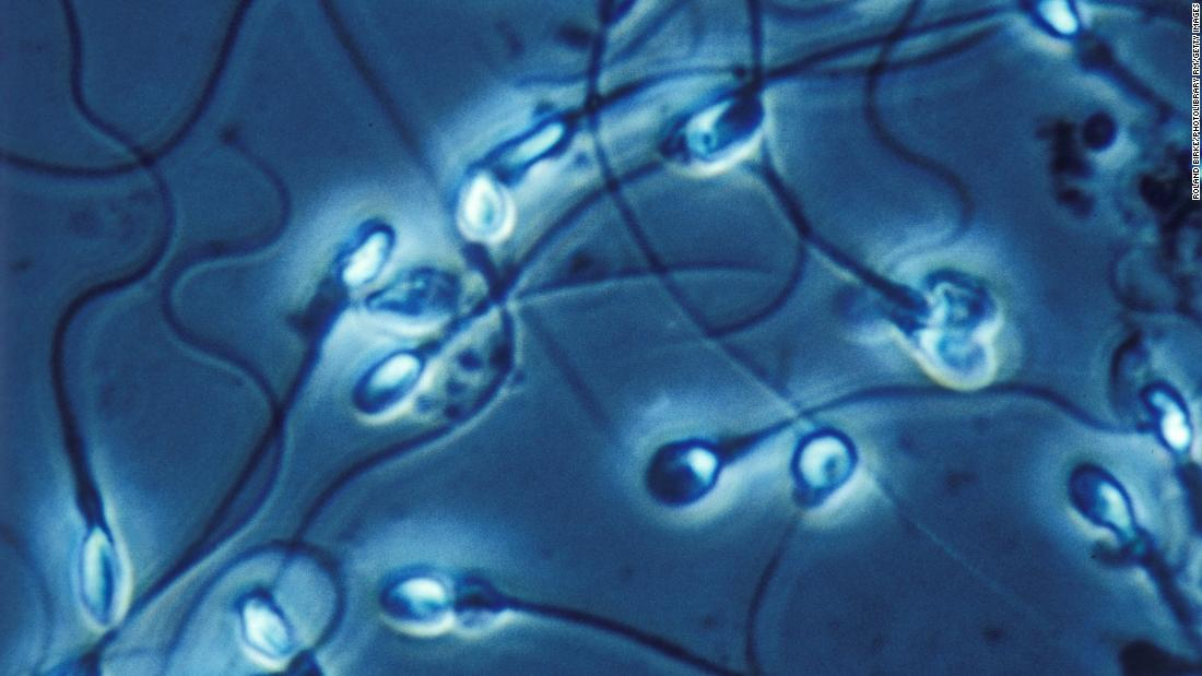 Poor quality American diet kills sperm count and lowers male testosterone, study says