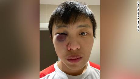 Image result for racist asian attacks