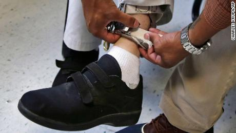In this August 13, 2014 photo, a therapist checks the ankle strap of an electrical shocking device on a student at the Judge Rotenberg Educational Center in Canton, Massachusetts. The FDA announced a ban on such devices on Wednesday.