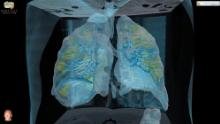 Silent hypoxia: Covid-19 patients who should be gasping for air but aren't