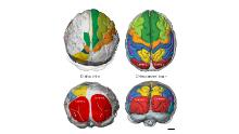The Selam toddler's brain was organized like an ape, but developed like a human.