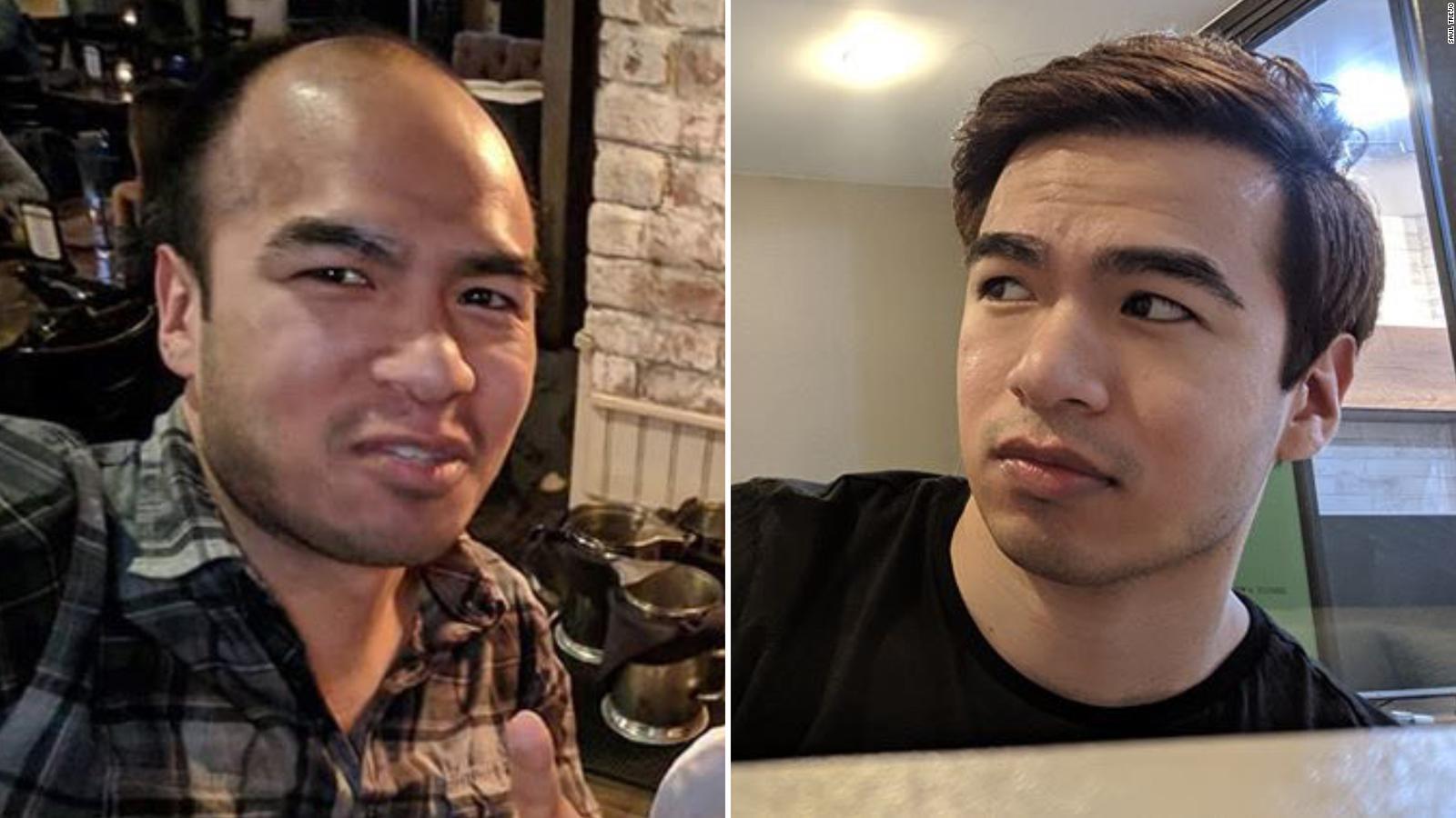 As Hair Loss Rises Bald Men In Asia Grapple With Cultural Stigmas Cnn Style