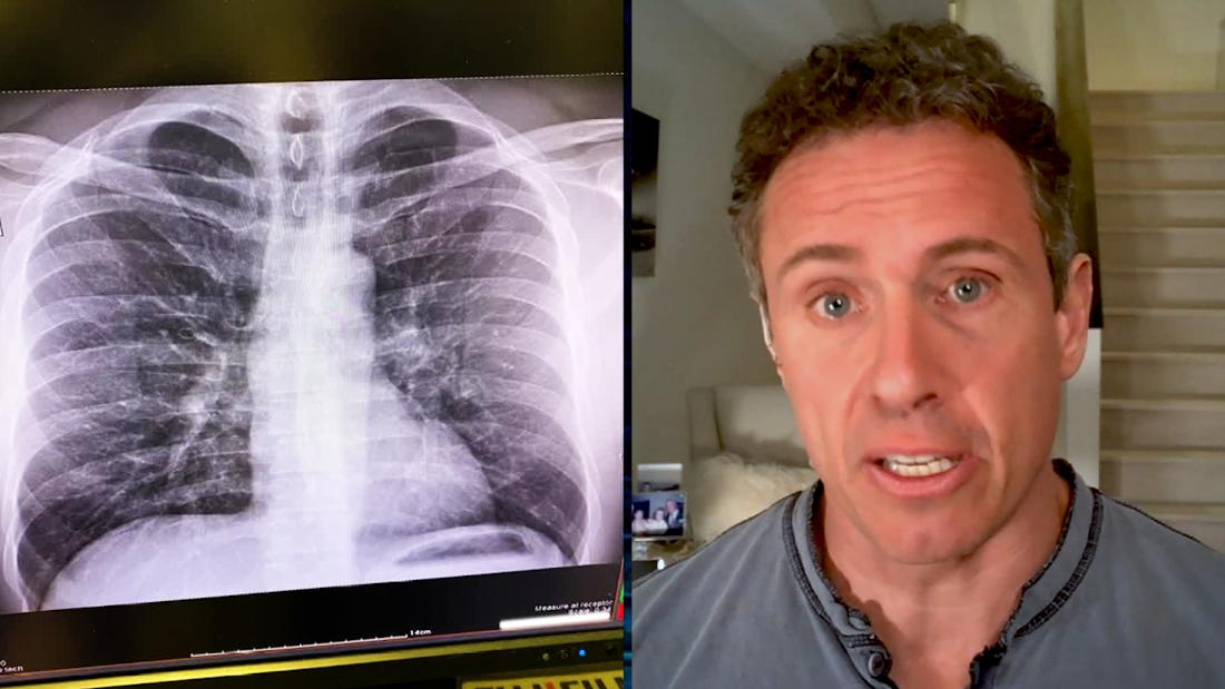 Cuomo shares chest X-rays after coronavirus diagnosis