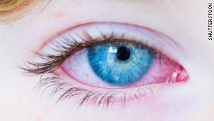O que é a doença de Kawasaki?  A síndrome da criança rara pode ter ligação com Covid-19