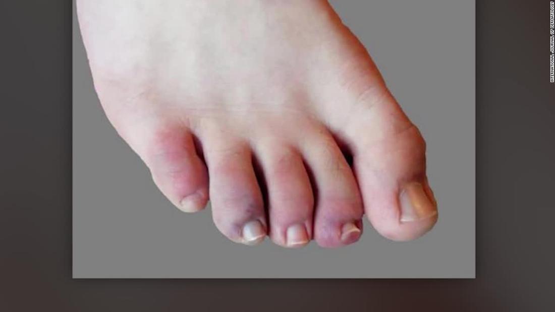 Covid-19 symptoms include blood clots, organ failure