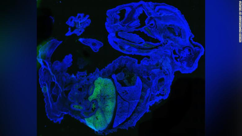 This figure shows a large amount of human cells (labeled in green) in a 17-day-old mouse embryo (labeled in blue). Most human cells are red blood cells, which accumulate in the fetal liver of mice.