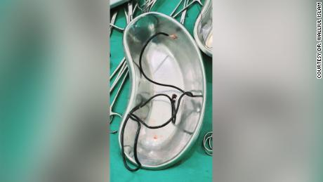 The patient initially told doctors he had swallowed some earphones.