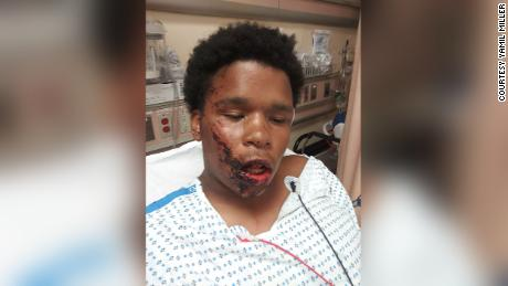 Bronx teenager suffers facial fractures after allegedly being tased by NYPD, lawyer tells CNN