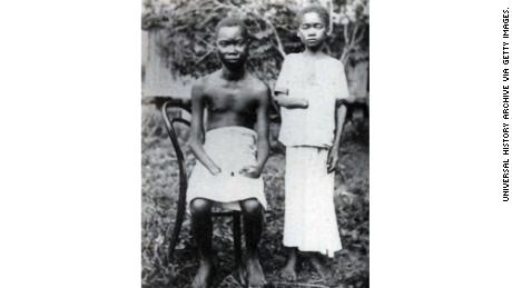 Amputation was frequently used to punish workers nad their families in the Congo Free State, controlled by King Leopold II of Belgium.