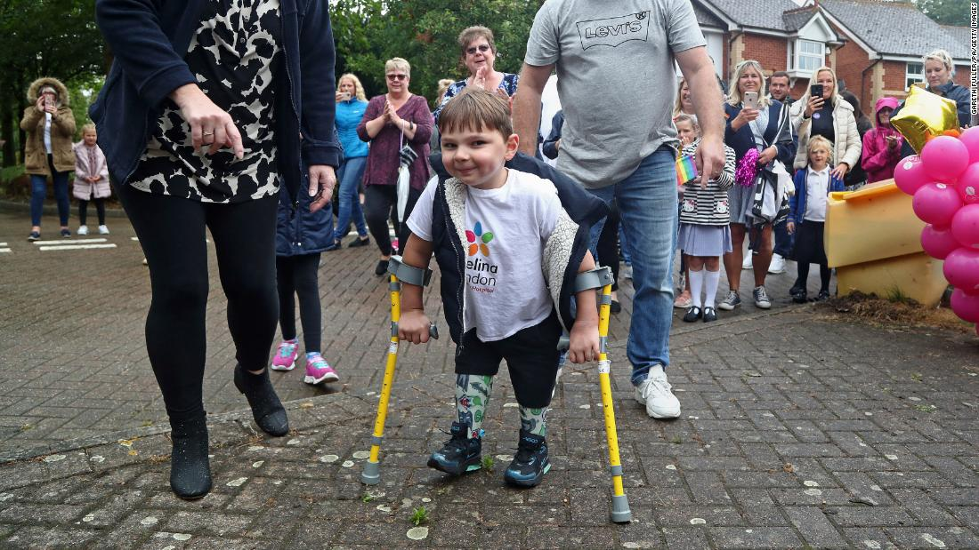 A 5-year-old boy with prosthetic legs has raised $1 million for the NHS by walking 6 miles