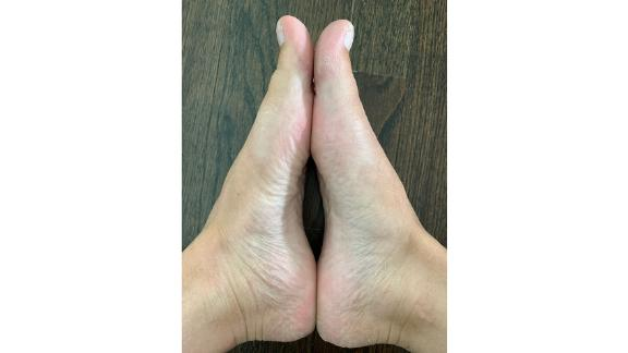 My feet after Baby Foot