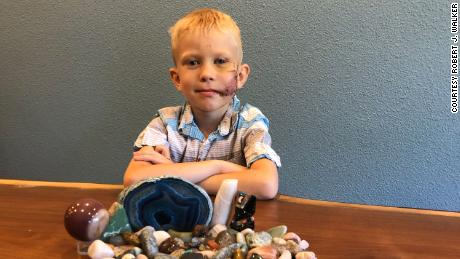 6-year-old Bridger Walker saved his sister from a dog attack.