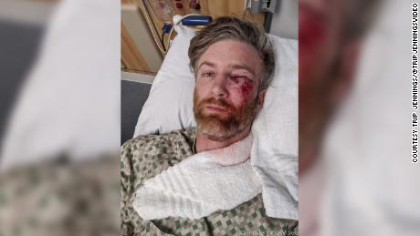 Trip Jennings in the hospital after he was shot in the eye by what he believes was a pepper ball.