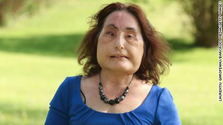 Connie Culp, the first person to receive a near-total face transplant in the US, has died
