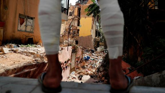 A man whose legs were injured because of the explosion looks at a destroyed house on Friday.