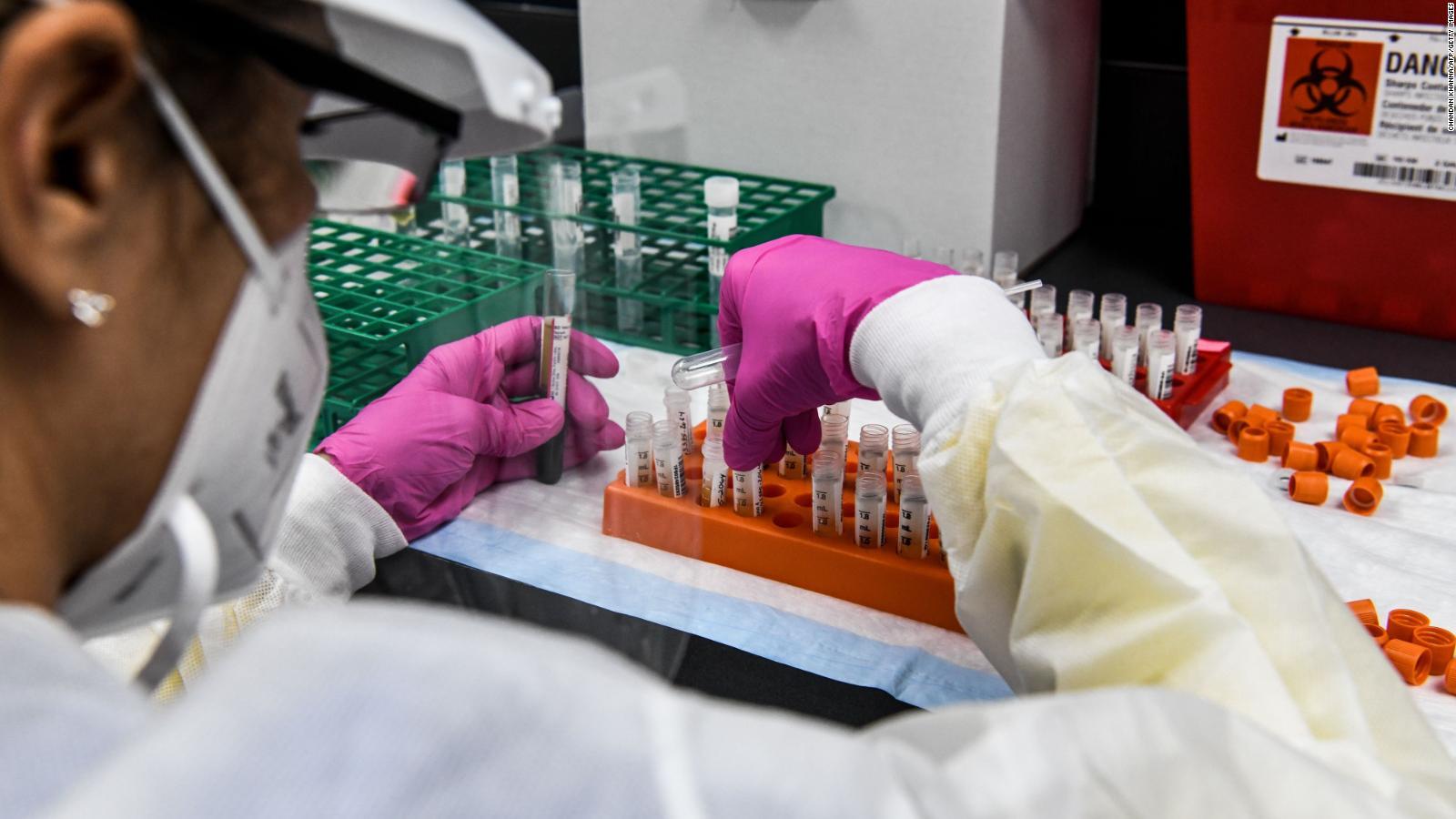 Majority of Americans believe political pressure will cause FDA to rush a  coronavirus vaccine, new poll finds - CNNPolitics