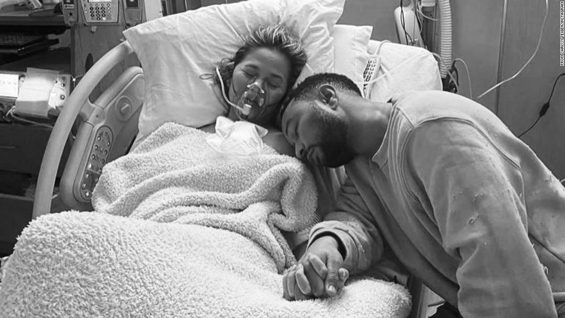 Chrissy Teigen loses baby after pregnancy complications, calling it the 'darkest of days'