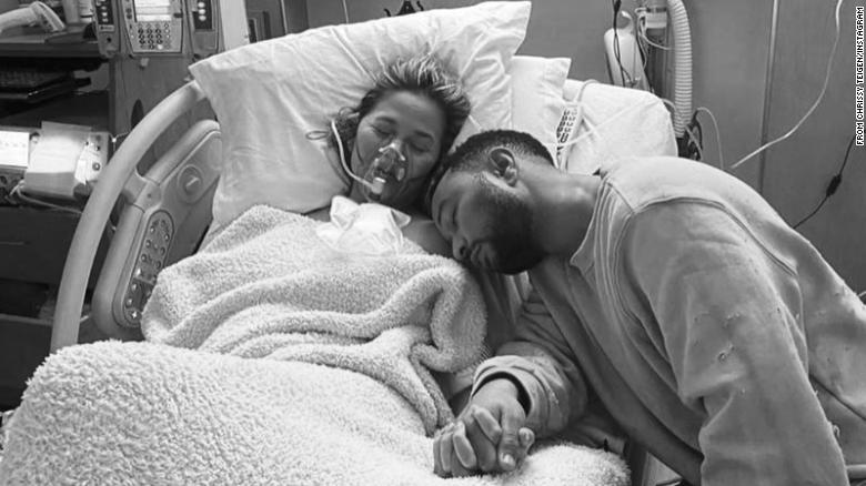Chrissy Teigen's heartbreaking announcement highlights the stigma around pregnancy loss