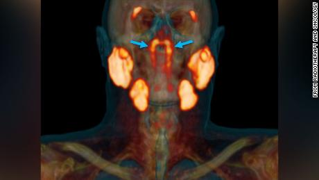 A specialized scan indicated a previously unnoticed pair of salivary glands in the human skull.