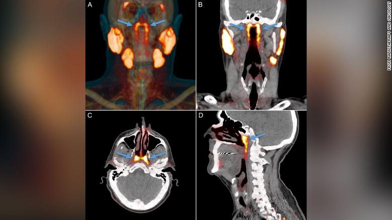 This overview of the salivary gland tissues as seen in PSMA PET/CT scans depicts the known major salivary glands and an unknown structure (indicated by arrows) in the nasopharynx showing similar imaging characteristics.
