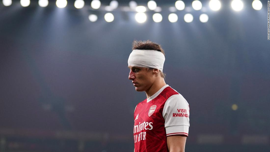 'How many warnings does football need?' Sickening clash of heads puts concussion protocols under scrutiny