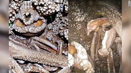 Shown at left is the skull of Altamura Man, a Neanderthal who died in a cave in southern Italy at least 130,000 years ago. His skeleton is covered in calcite mineral deposits.