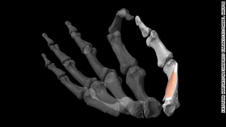 The powerful thumb that characterizes the human hand evolved only in some fossil hominin species around 2 million years ago, the study suggested.