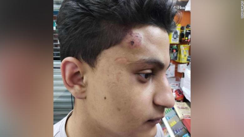New Jersey attorney general is investigating claims that police officers repeatedly punched an Arab teen without provocation