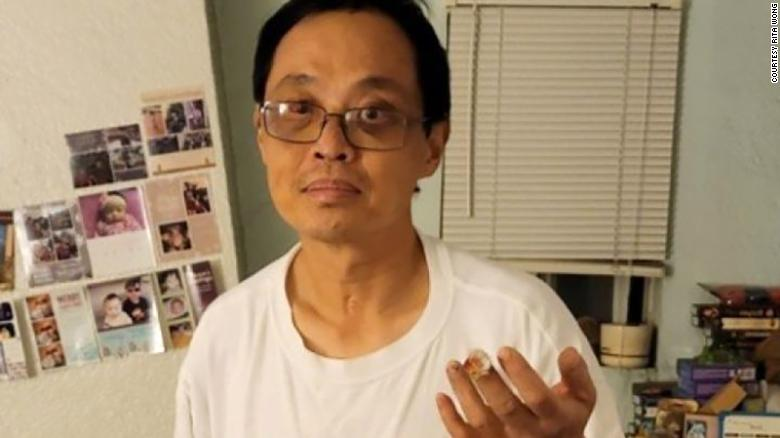 An Asian-American man suffers a severed finger after an unprovoked attack
