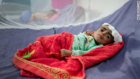 Mohammed, a severely malnourished 6-month old, at the Therapeutic Centre in Abs Hospital.