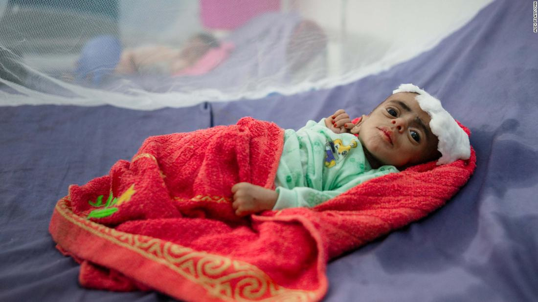 Opinion: The best route to ending the humanitarian disaster in Yemen