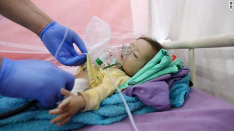 Ten-month-old Hassan Ali, who died in a hospital in Abs, Yemen, where he was being treated for malnutrition.