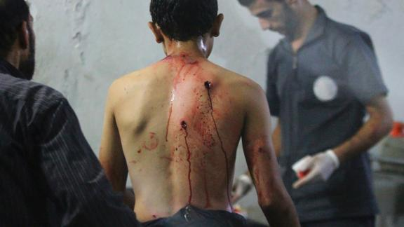 Medics tend to a man's injuries at a field hospital in Douma after airstrikes on September 20, 2014.