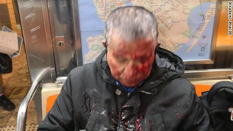 A subway passenger after he was assaulted on Friday.