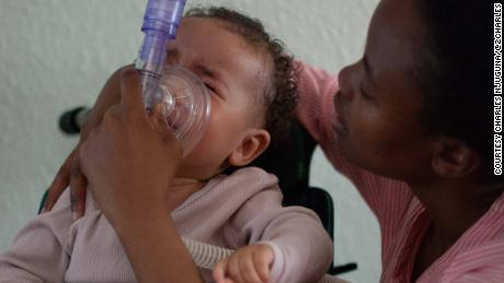 "To calm Ayah down during breathing treatments, her mother softly sings ""You Are My Sunshine."""