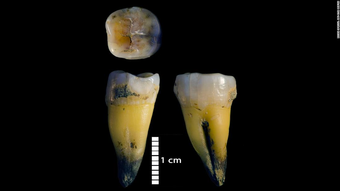 This is the second lower molar of a modern human found in Bacho Kiro Cave in Bulgaria that was associated with tools from Initial Upper Palaeolithic about 45,000 years ago.