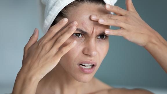 Woman looking at pimple