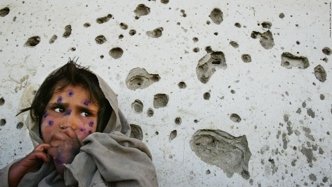 "Mohboba, 7, stands near a bullet-ridden wall in Kabul as she waits to be seen at a health clinic in March 2002. She had a skin ailment that plagued many <a href=""https://www.cnn.com/2016/05/31/middleeast/cnnphotos-afghanistan-between-hope-and-fear"" target=""_blank"">poverty-stricken children in Afghanistan.</a>"