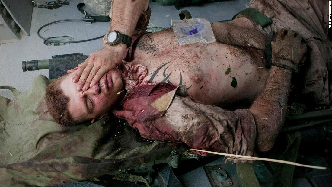 "US Marine Cpl. Burness Britt reacts after being lifted onto a medevac helicopter in June 2011. A large piece of shrapnel from an improvised explosive device cut a major artery on his neck near Sangin, Afghanistan. This photo was taken by Anja Niedringhaus, an Associated Press photographer <a href=""https://www.cnn.com/2014/04/04/world/asia/afghanistan-journalists-shot/index.html"" target=""_blank"">who was fatally shot in Afghanistan in 2014.</a>"