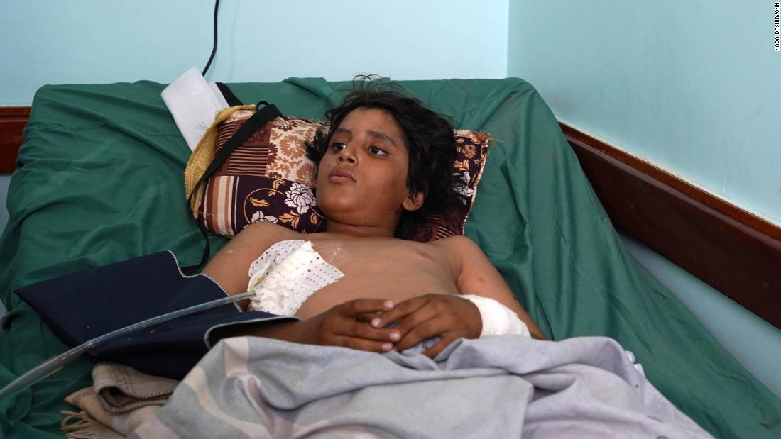 Saif Abalwi, 13, was admitted to Marib General Hospital after being injured in a Houthi missile attack.