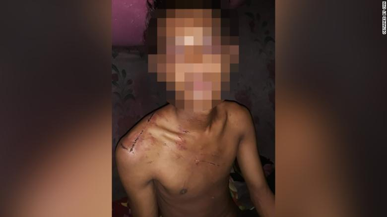 The 19-year-old said he was repeatedly beaten while held in military detention.