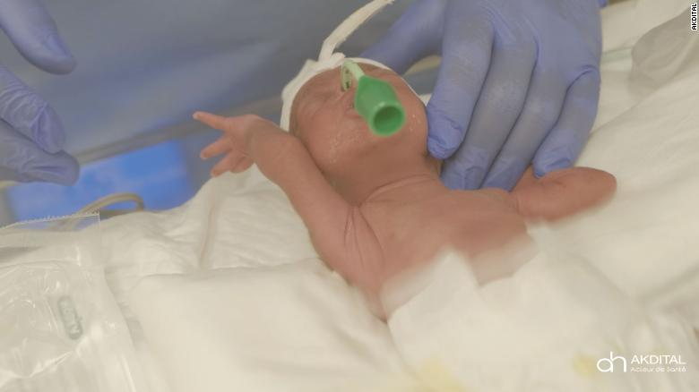 Tiny nonuplets born in Morocco have a fight ahead, hospital says