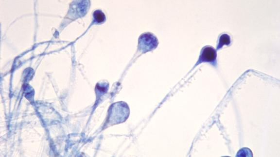 Black fungus, or mucormycosis, is caused by a fungus named mucor, which is found on wet surfaces.