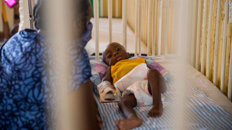 Child malnutrition is spiking in Haiti amid pandemic, says UNICEF