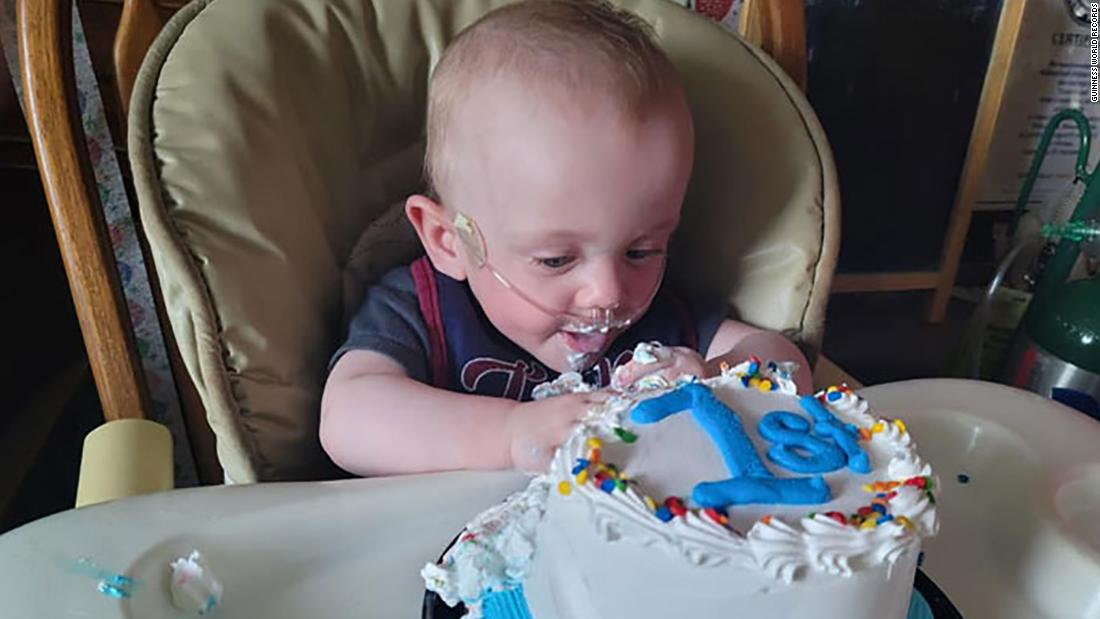 The world's most premature baby has celebrated his first birthday after beating 0% odds of surviving